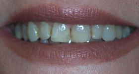 Closeup of discolored and damaged teeth