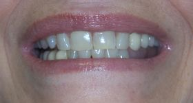 Closeup of yellowed unhealthy smile