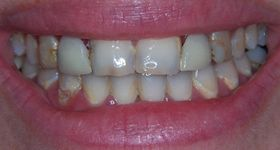 Closeup of smile with severe tooth decay and damage