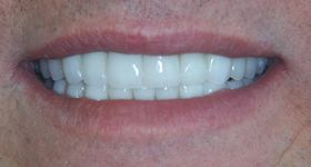 Closeup of smile with repaired side tooth