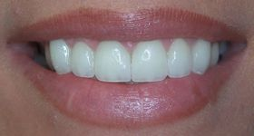 Closeup of perfectly aligned consistently sized teeth