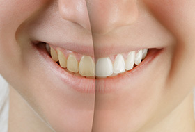 Closeup of smile half before and after whitening