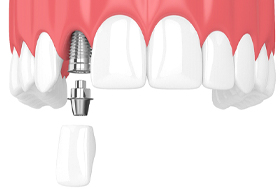 Model of a single dental implant.