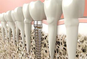 A diagram of an integrated dental implant.