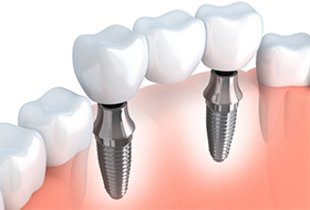 A diagram of an implant-retained bridge.