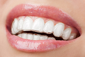 Closeup of smile with Invisalign trays in place